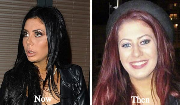 Chloe Towie Before Plastic Surgery 1