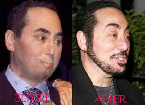 David Guest Before Plastic Surgery 1
