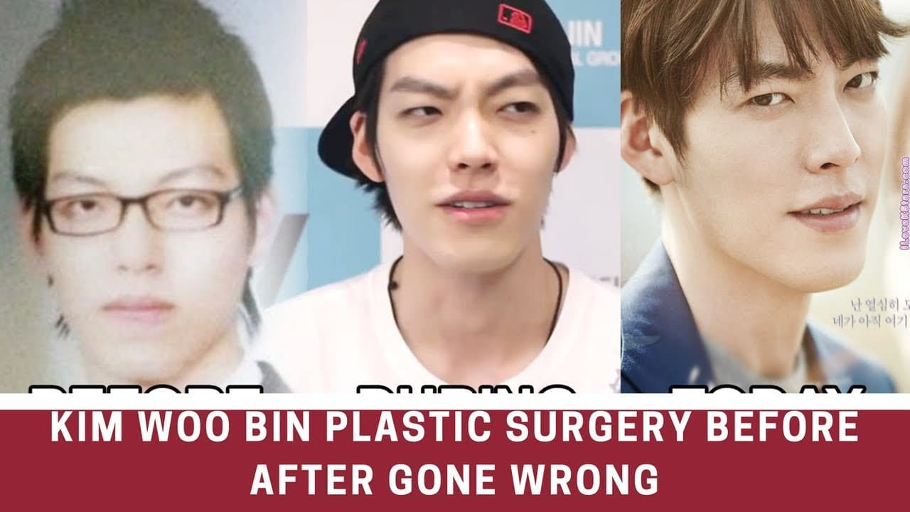 Dong Wook Before Plastic Surgery 1
