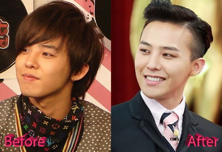 Gdragon Before Plastic Surgery 1