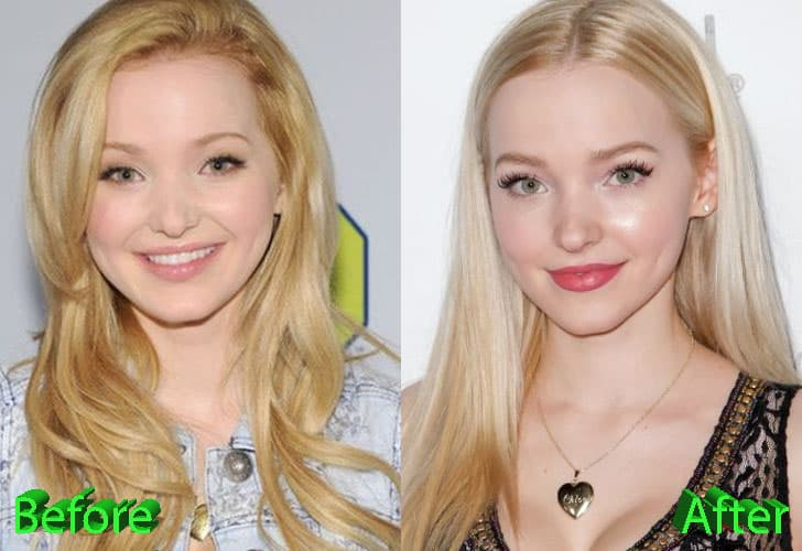 Jessie Before After Plastic Surgery 1