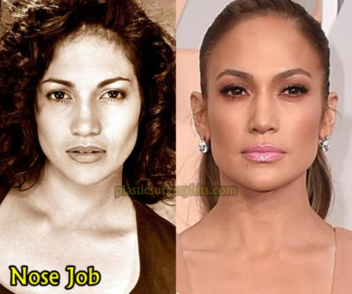Jlo Plastic Surgery Before And After 1