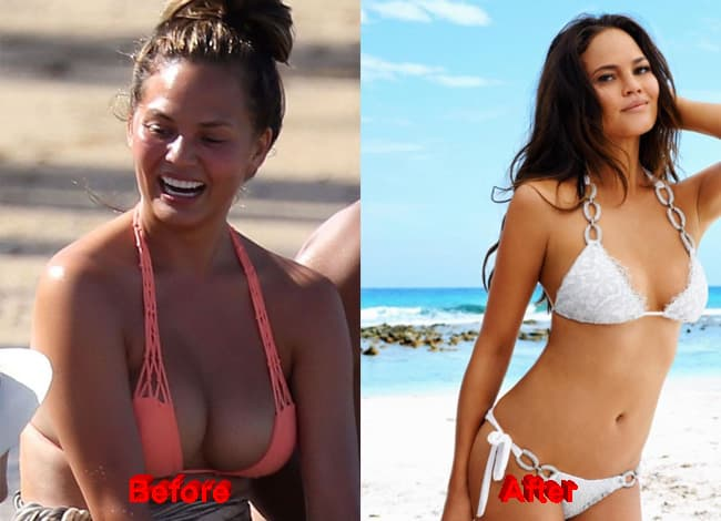 Phoenix Plastic Surgery Before After 1