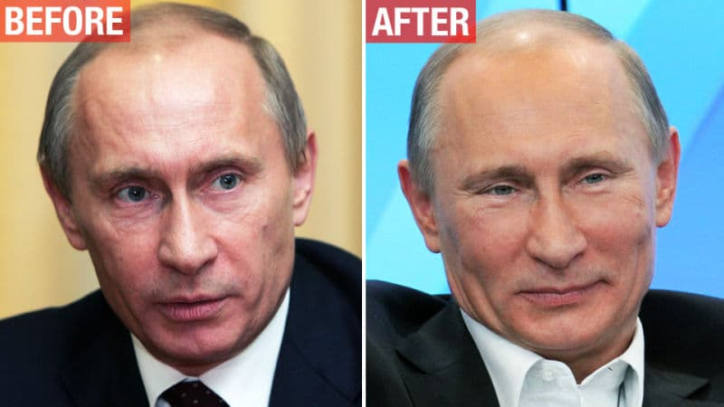 Putin Before After Plastic Surgery 1