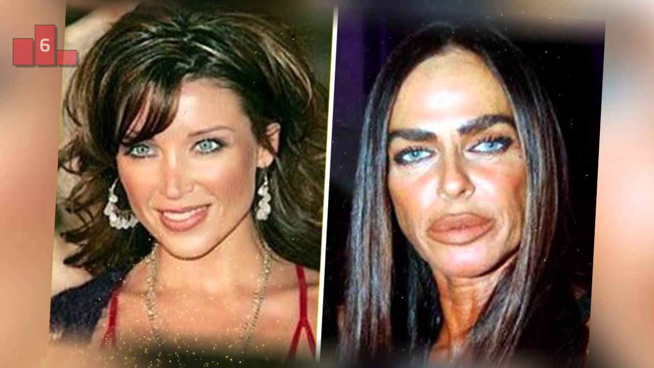 Worst Plastic Surgery Before And Now 1