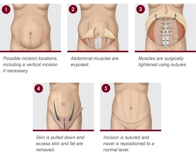 types of plastic surgery for stomach 1