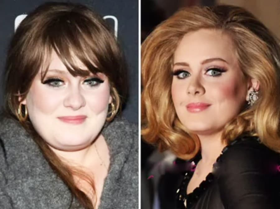 Adele Plastic Surgery Before After 1
