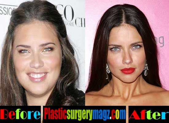 Adriana Lime Before Plastic Surgery 1