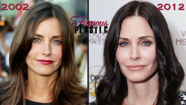 Courtney Cox Before Plastic Surgery 1