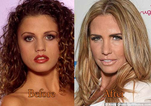 Katie Cassidy Before Plastic Surgery 1