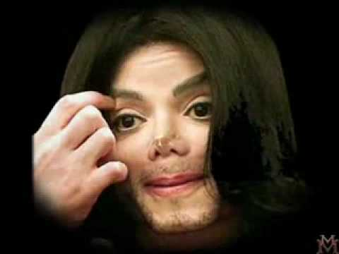 Michael Before Plastic Surgery 1