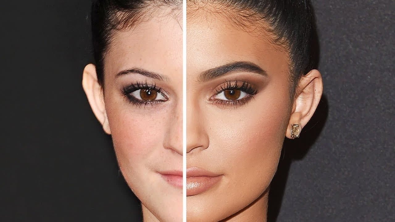 No Before And After Plastic Surgery 1