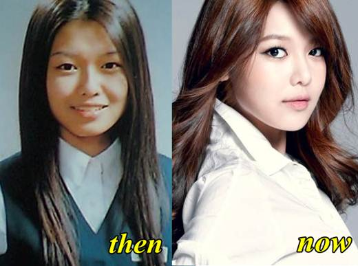 Sooyoung Snsd Before Plastic Surgery 1