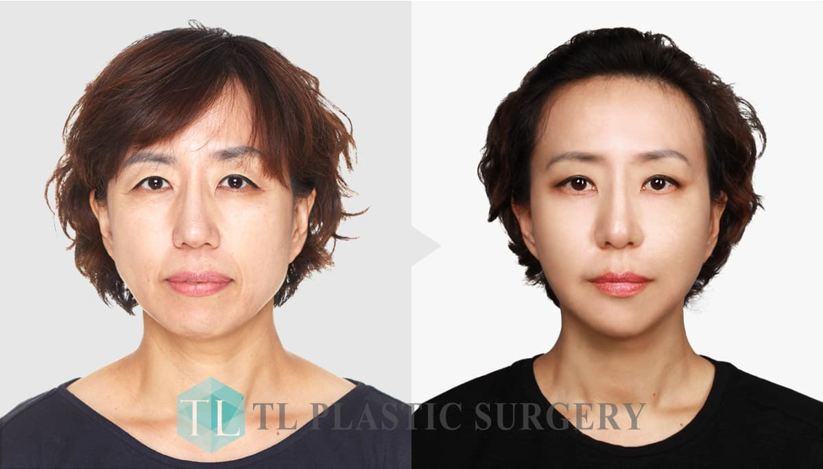 Tl Plastic Surgery Before After 1