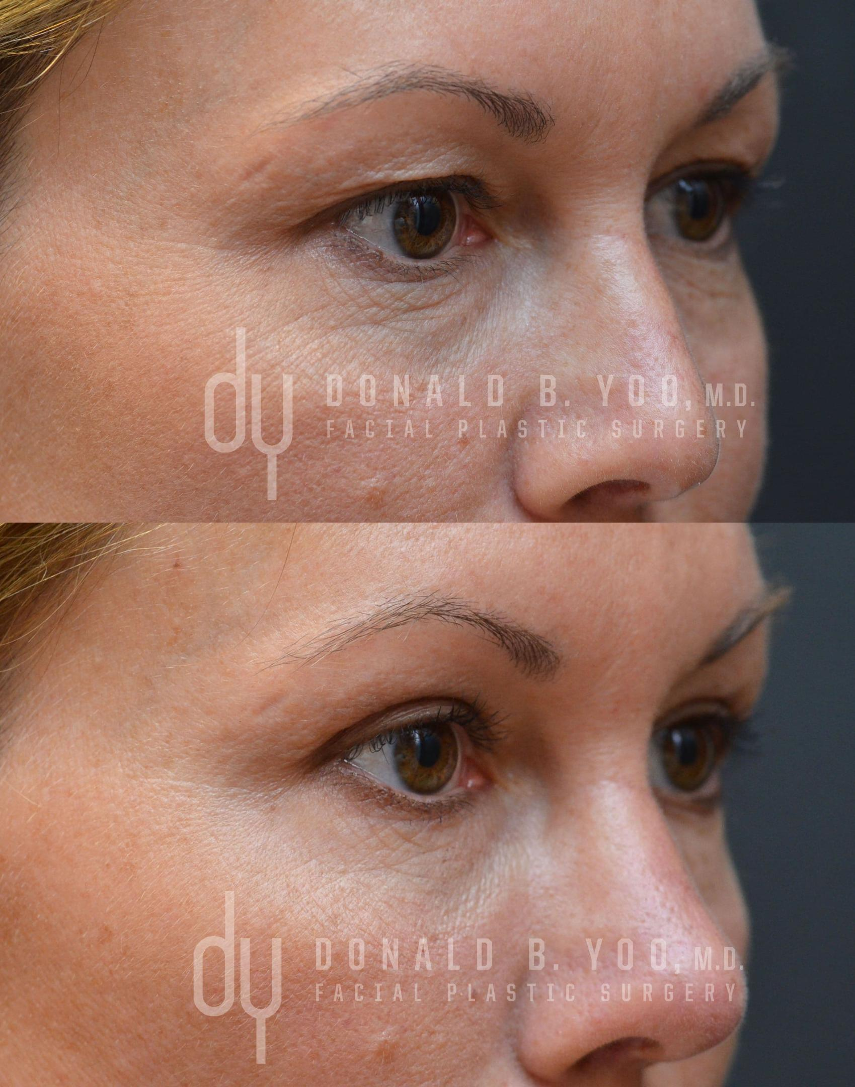 excess skin plastic surgery 1
