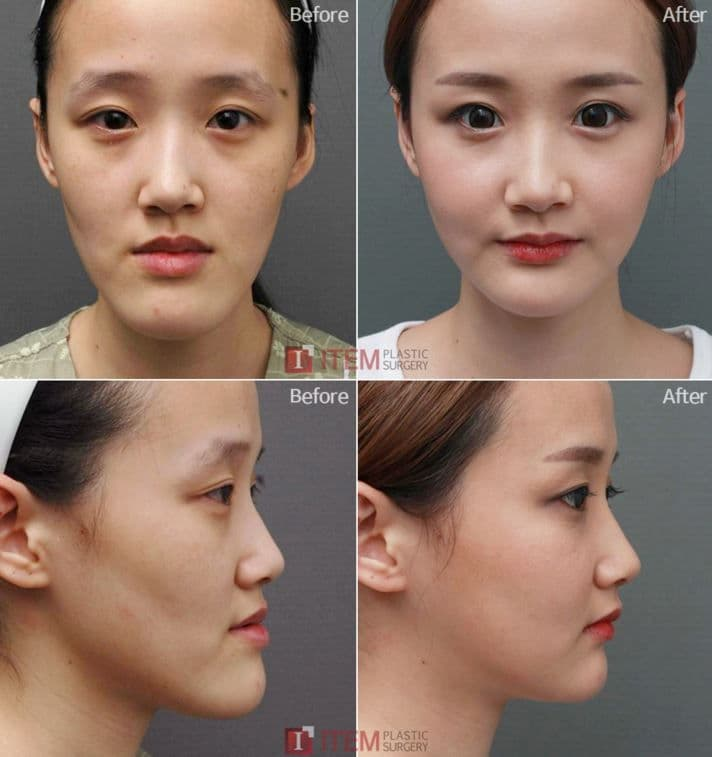 jaw reduction plastic surgery 1