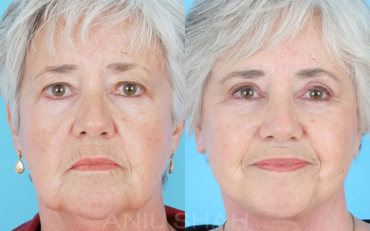 plastic surgery aging face 1