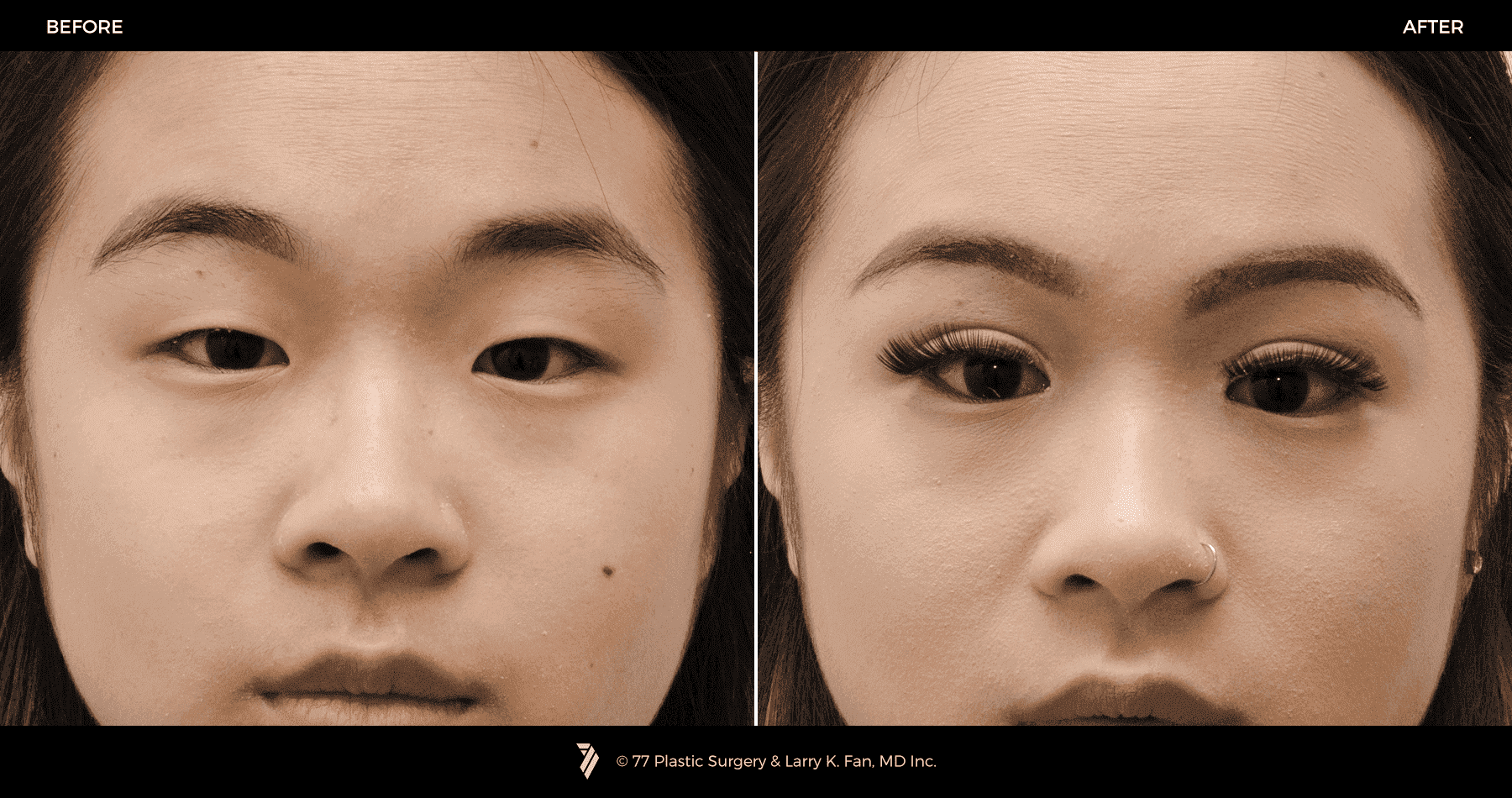 plastic surgery for asian eyes 1