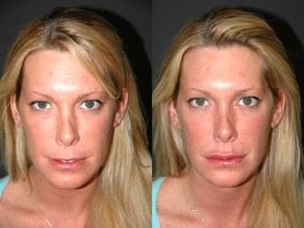 plastic surgery on lips cost 1