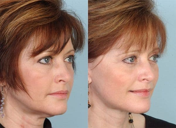 seattle plastic surgery prices 1