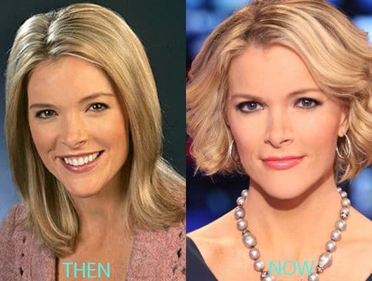 Did Kelly Wiglesworth have plastic surgery
