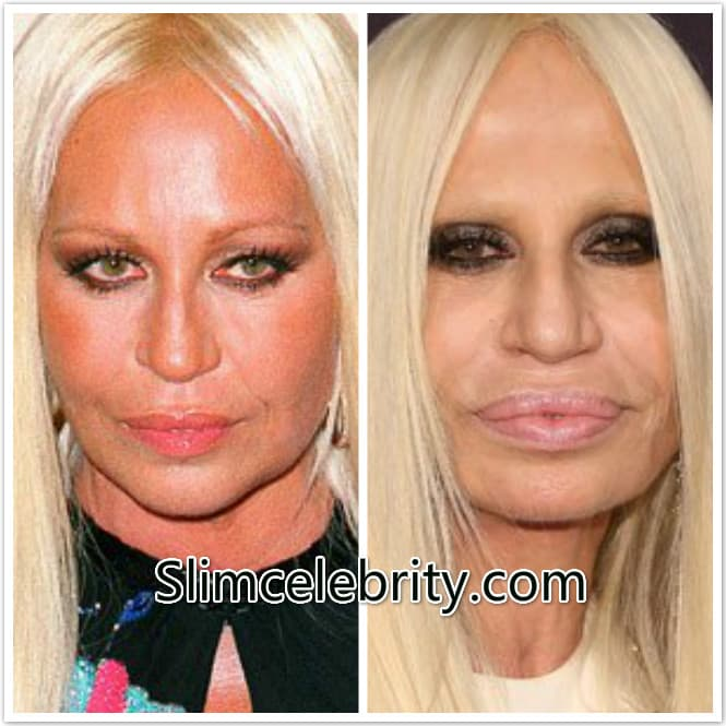 Anna Wintour Plastic Surgery Before And After Celebrity