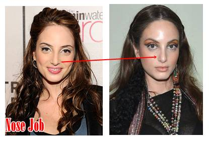 Alexa Joel Plastic Surgery Before And After photo - 1