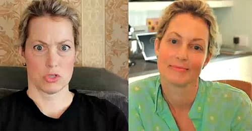 Ali Wentworth Plastic Surgery Before And After photo - 1