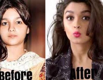 Alia Bhatt Before And After Plastic Surgery photo - 1