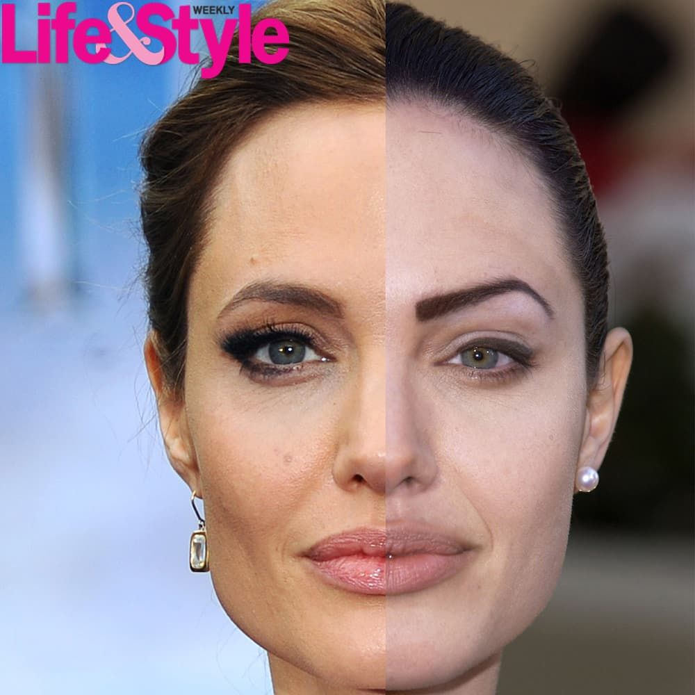 Angelina Jolie Plastic Surgery Before And After Photos photo - 1
