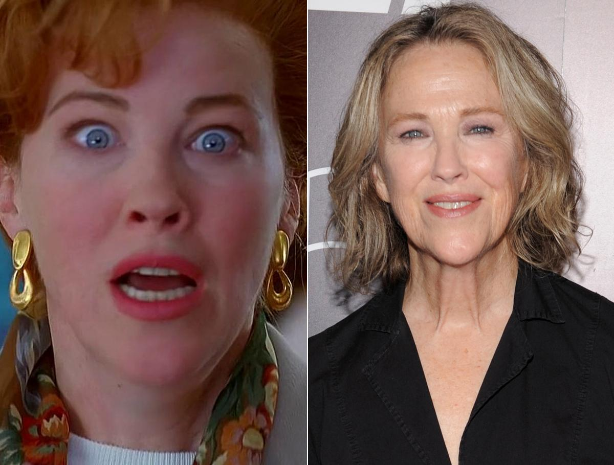 Annabel Bowlen Before After Plastic Surgery photo - 1