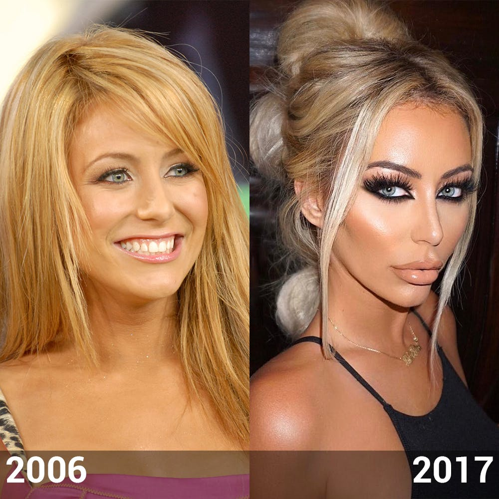 Aubrey Oday Before And After Plastic Surgery photo - 1