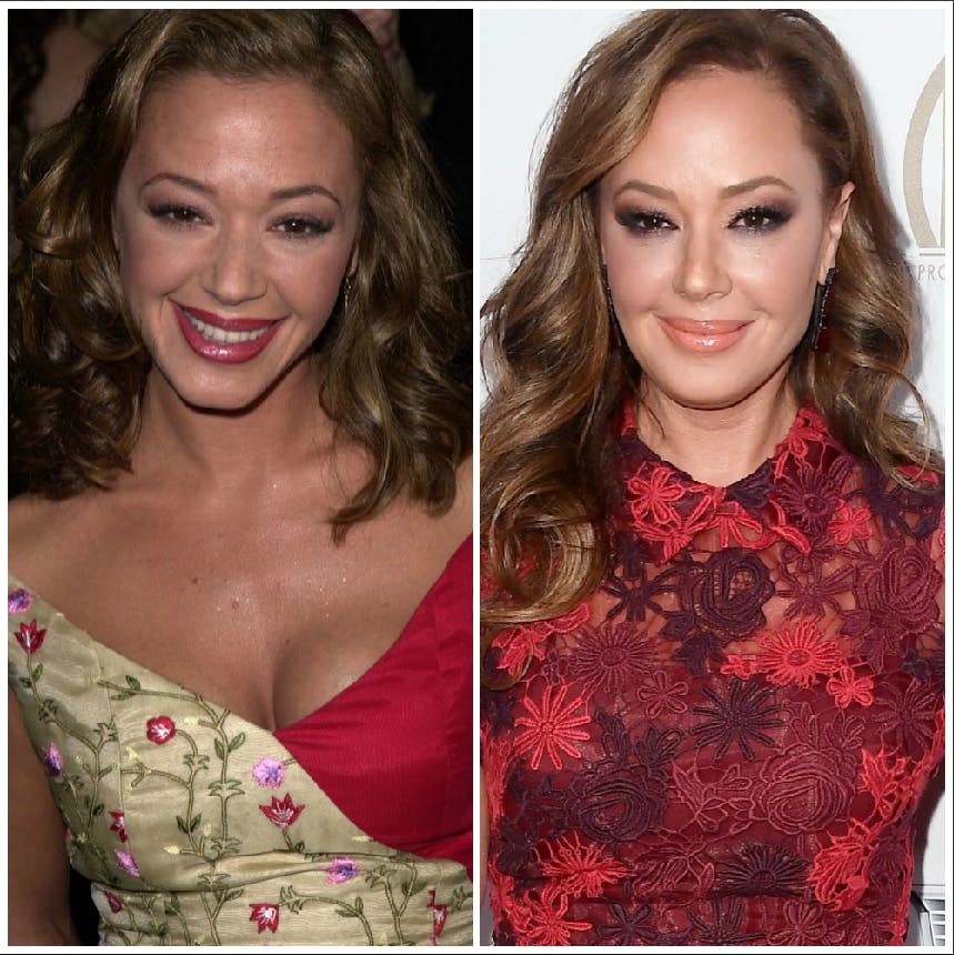 Bad Plastic Surgery Before And After photo - 1