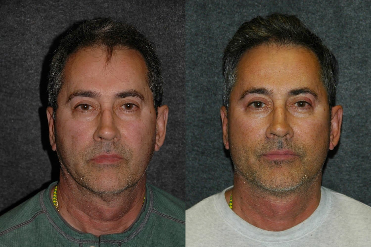 Before And After Facial Plastic Surgery Young Male photo - 1