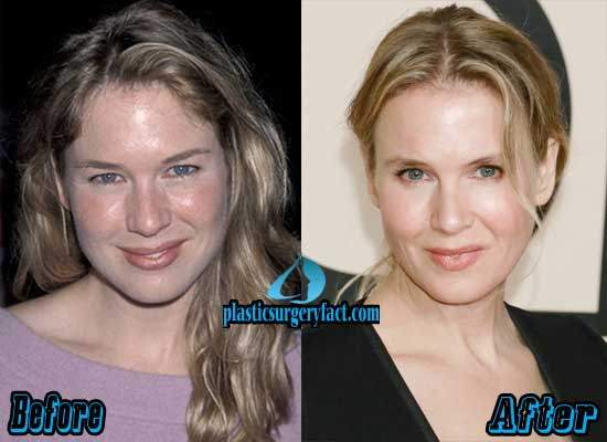 Before And After Renee Zellweger Plastic Surgery photo - 1