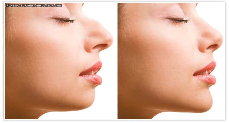 Before And After Simulator Plastic Surgery photo - 1
