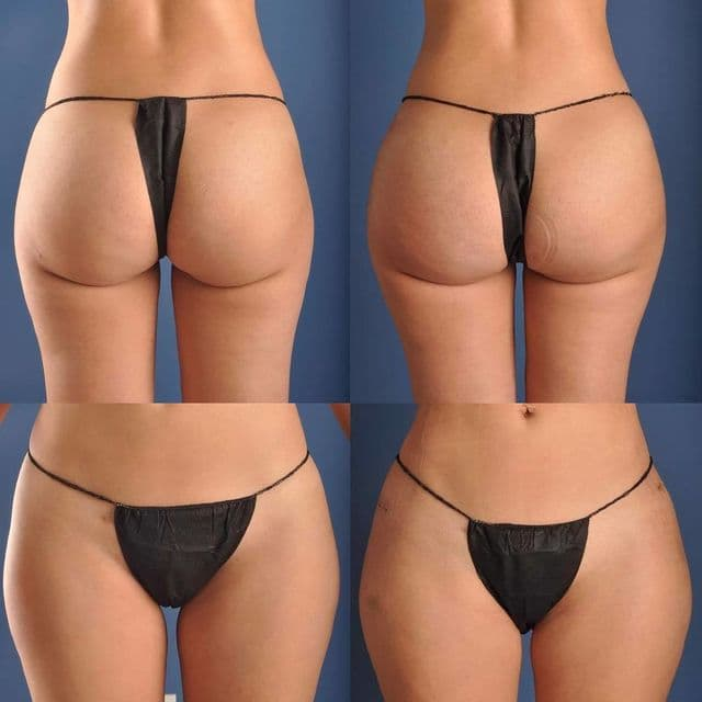 Breast Implants Plastic Surgery Before And After photo - 1