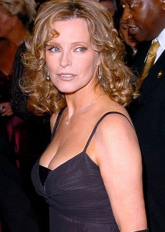 Cheryl Tiegs Before After Plastic Surgery photo - 1