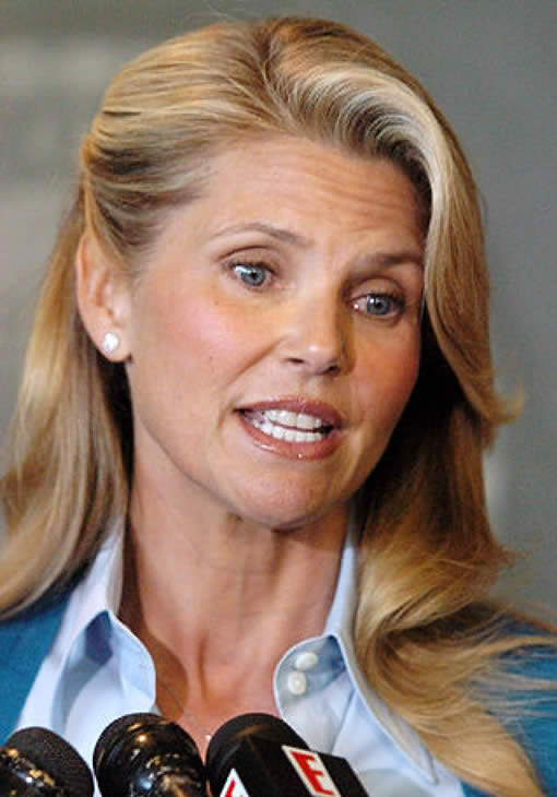 Christie Brinkley Plastic Surgery Before And After photo - 1