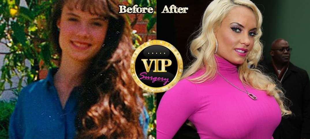 Coco Austin Before After Plastic Surgery photo - 1