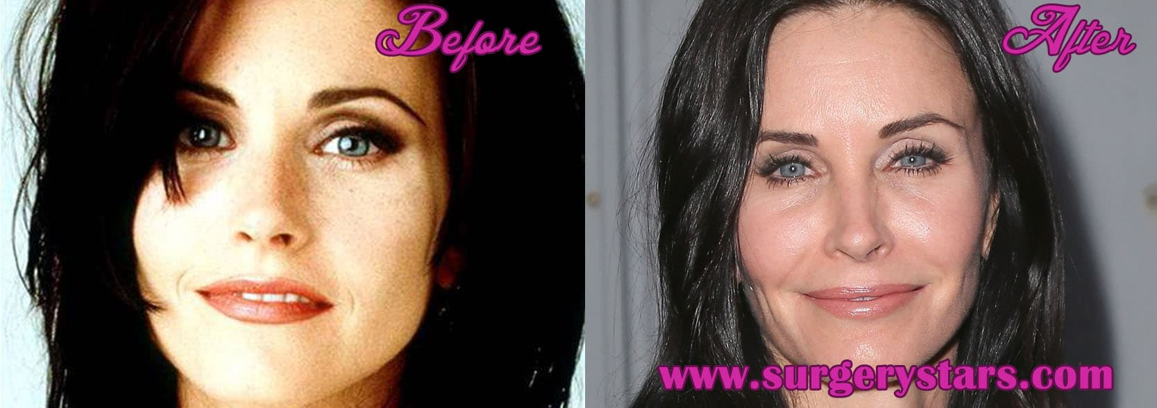 Courtney Cox Before And After Plastic Surgery photo - 1