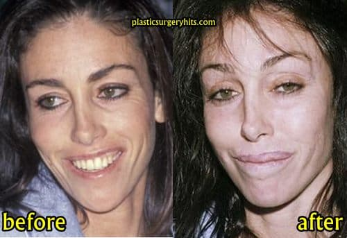 Heidi Fleiss Plastic Surgery Before And After photo - 1