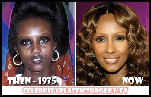 Iman Before And After Plastic Surgery photo - 1
