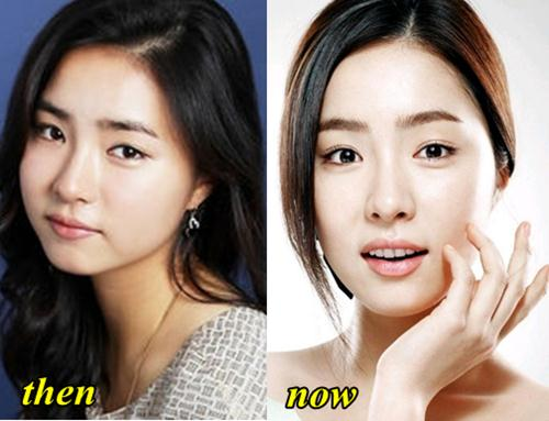 Jang Geun Suk Plastic Surgery Before And After photo - 1