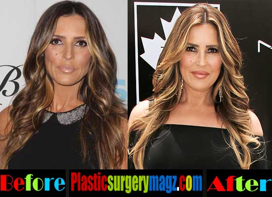 Jillian Michaels Plastic Surgery Before And After photo - 1