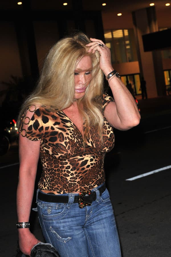 Jocelyn Wildenstein Before Plastic Surgery photo - 1