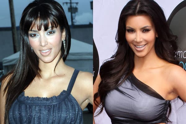 Kim Kardashian Before And After Plastic Surgery Pictures photo - 1