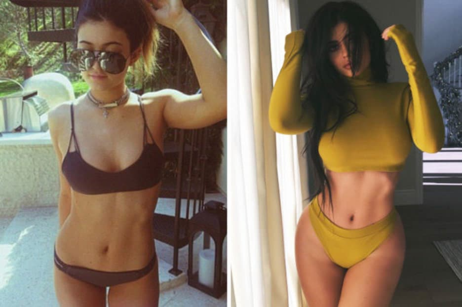 Kim Kardashian Butt Before And After Plastic Surgery photo - 1