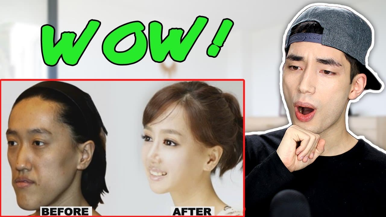 Korean Stars Plastic Surgery Before After photo - 1
