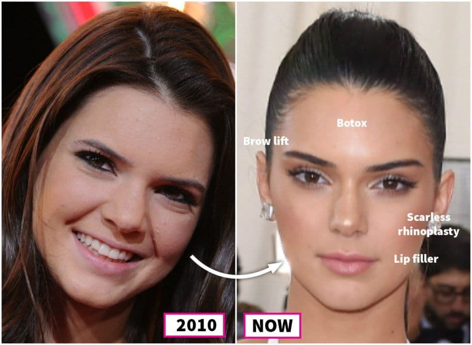 Kylie Jenner Plastic Surgery Before And After photo - 1